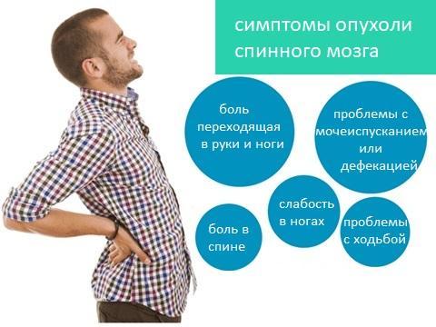 признаки новообразований спинного мозга