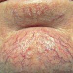Фото пациентов с куперозом