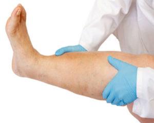 мочегонные препараты можно принимать при отеках ног