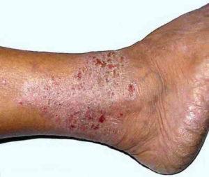 экземы на ногах
