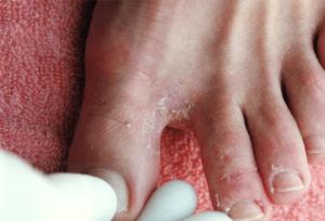 определить грибок на ногах