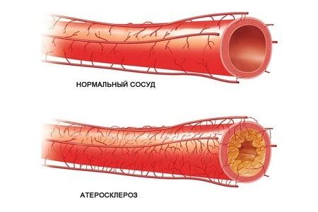 Нормальный сосуд и атеросклероз