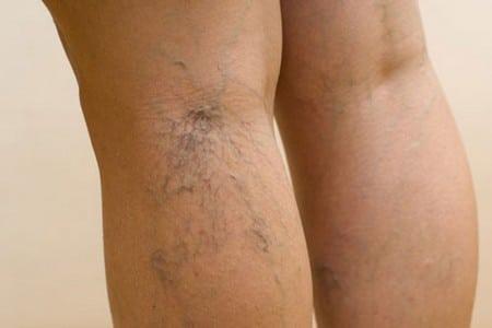 Болезнь на ноге
