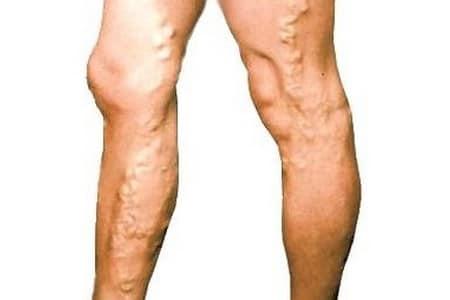 Ноги с варикозом