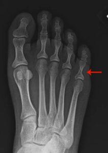 перелом мизинца на ноге