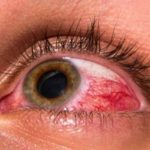Повышенное глазное давление на фото