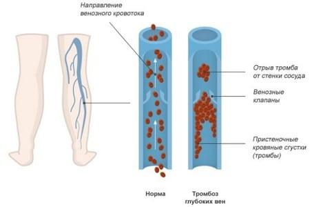 рисунок тромбоза