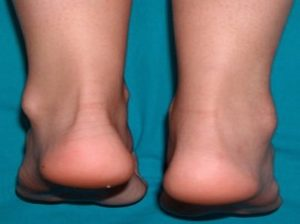Основные симптомы и лечение периартрита голеностопного сустава