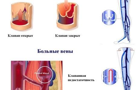 здоровая и больная вены