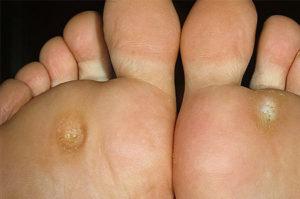 Как следует ухаживать за ногами во время лечения грибка