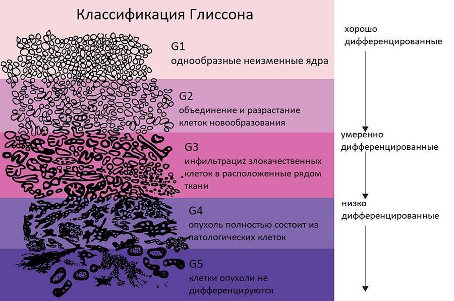 классификация по глиссону