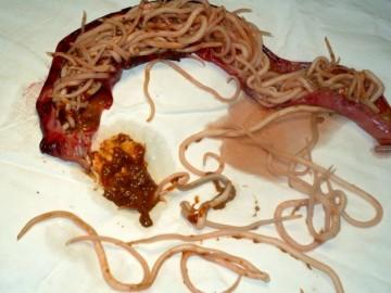 Паразиты в печени человека: основные методы лечения и профилактики