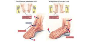 Основные симптомы и лечение плосковальгусной деформации стоп