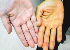 Желтуха у взрослых: симптомы и лечение болезни