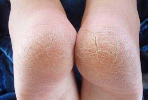 Почему трескается кожа на пятках на ногах