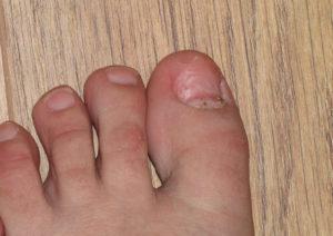 отвалился ноготь на ноге