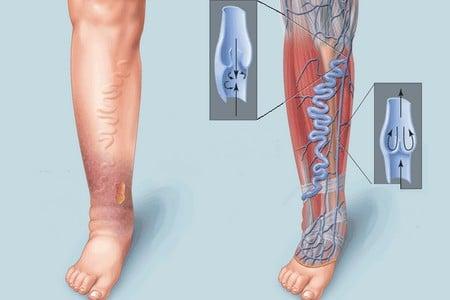 Ноги с больными венами