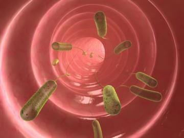 Что такое дивертикулез кишечника: симптомы и методы лечения