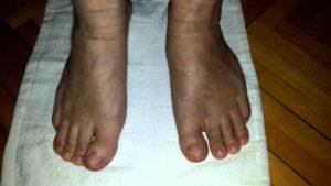 Физиотерапии при травме голеностопа