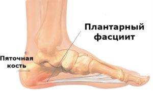 Основные симптомы и лечение подошвенного фасциита ступни