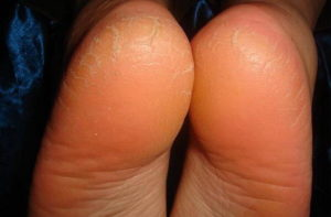Почему трескается кожа на пятках