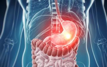 Повышенная кислотность желудка – симптомы и лечение