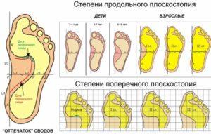 Техники массажа при плоскостопии