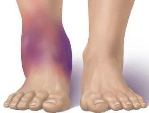 надрыв связок голеностопного сустава
