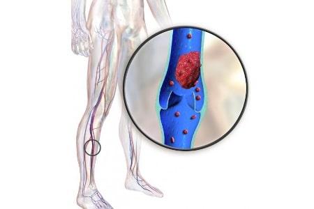 Тромбоэмболия конечностей