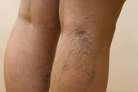 Нога с варикозом