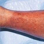 Фото пациентов с варикозным дерматитом
