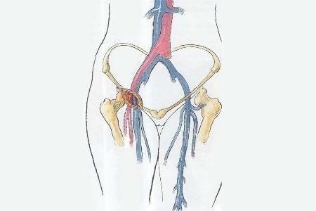 рисунок сосудов ног