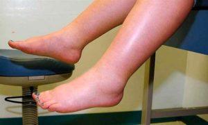 Какие мочегонные препараты можно принимать при отеках ног
