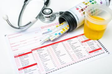 Рак тонкого кишечника: признаки и симптомы на разных стадиях
