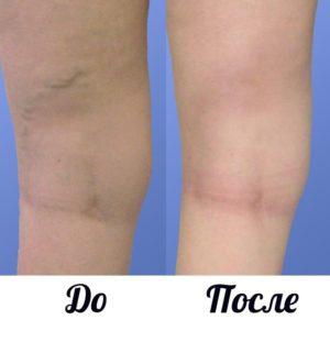 Фото до и после минифлебэктомии