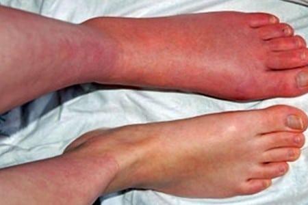 багрово-синюшная нога