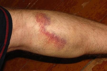 Разрыв сосуда на ноге