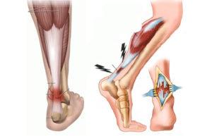 ахиллово сухожилие при ходьбе и лечение