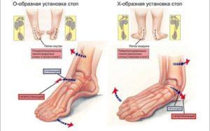 лечение продольного плоскостопия