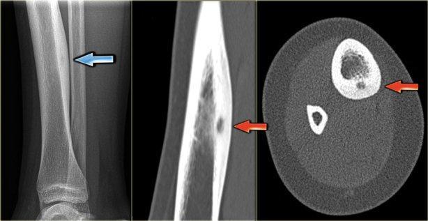 рентген опухоли