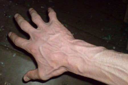 Рука с расширенными венами