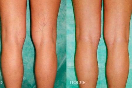 Ноги до и после проведения процедуры