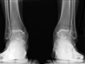 лечение посттравматического артроза голеностопного сустава