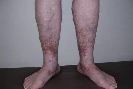 Ноги с болезнью