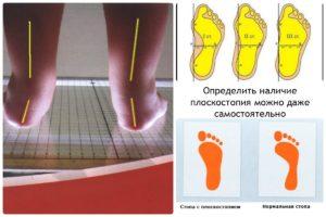 пределить плоскостопие по отпечатку стопы