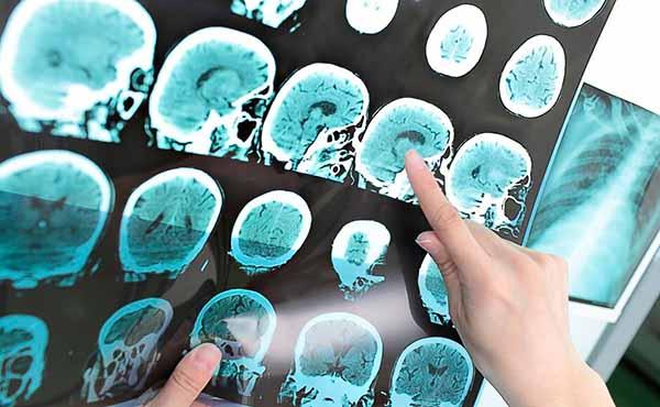 снимки опухоли