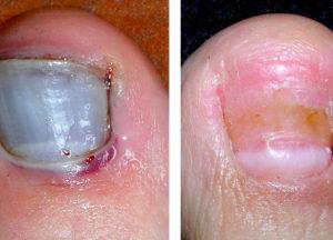 не проходит грибок ногтей