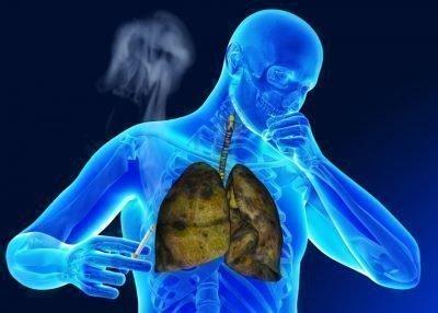 Носоглотка курильщика