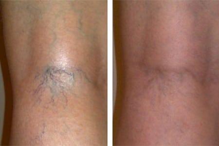 Нога до и после проведения процедуры
