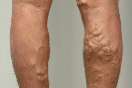 Ноги с расширенными венами
